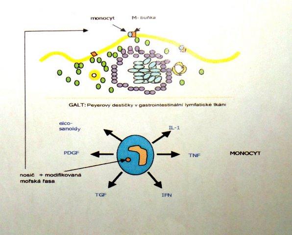 Jak revmatoidní artritidu řešit přirozenou cestou? Pomocí kapslí, které obsahují částice CRA !