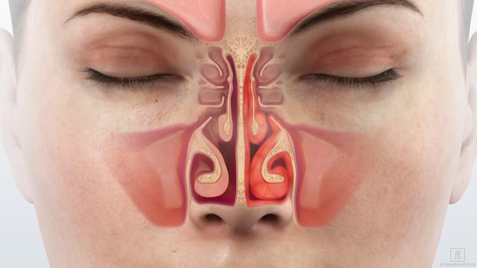 Rýma - postup, jak uvolnit dutiny a nemít odřený nos